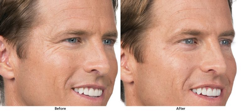 Man's face before and after botox treatment - side view