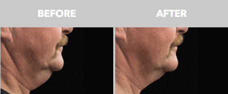 Coolsculpting Before and After - Double Chin - Man