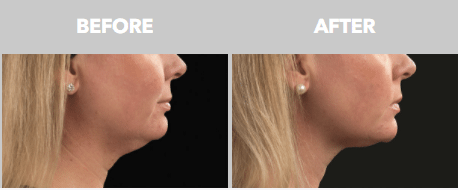 Coolsculpting Before and After - Double Chin - Woman Side View