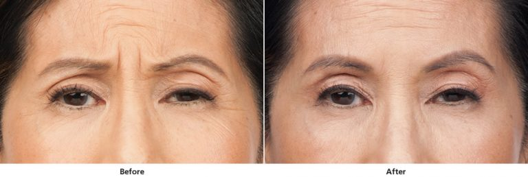 Before and after Botox treatment - front view of face
