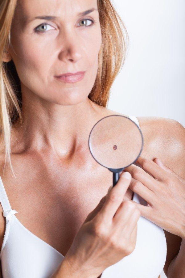 Woman examining a mole - checking for skin cancer