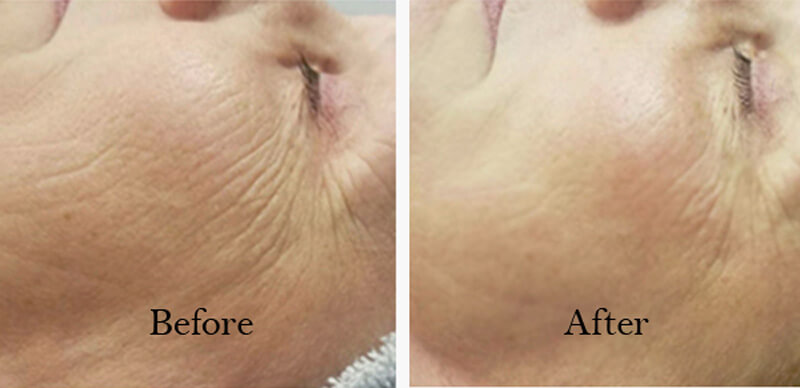 Before and After Facial to Reduce Fine Lines