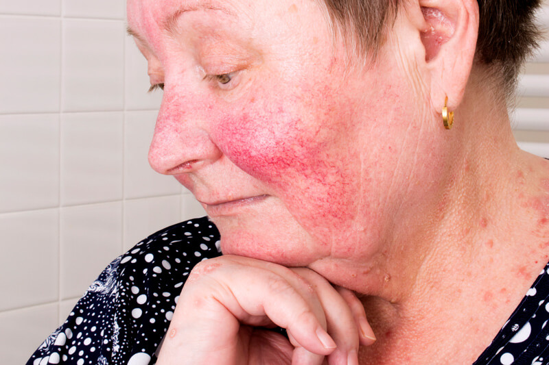 Signs And Symptoms Of Rosacea And Ways To Help Vibrance Medspa