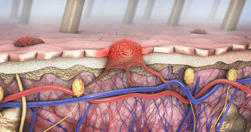 How Melanoma Forms in the Skin cells