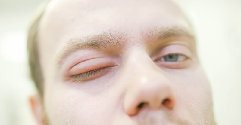 Man with swelling around eye area