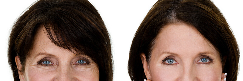 Skin-Aging-Around-the-Eyes